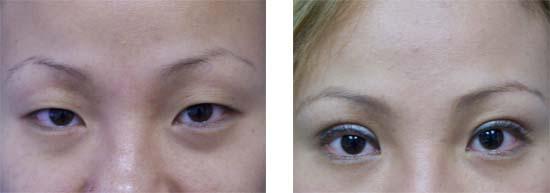 Asian Eyelid Surgery / Blepharoplasty Newport Beach, Orange