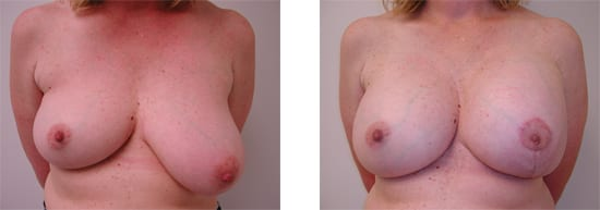 procedure breast reconstruction newport beach orange county ca