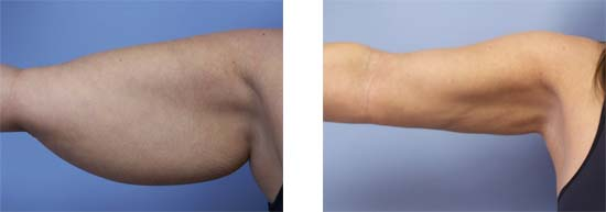 procedure liposuction newport beach orange county ca