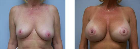 procedure mastopexy breast lift with augmentation newport beach orange county ca
