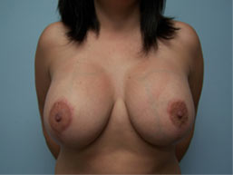 Breast Lift with Augmentation Photo Gallery Patient - After