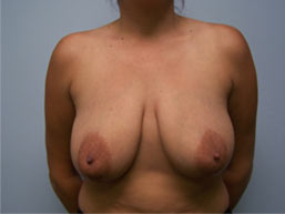 Breast Lift with Augmentation Photo Gallery Patient - Before