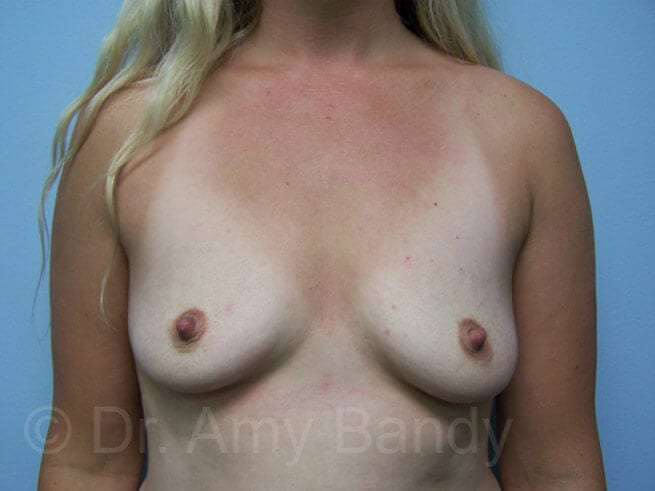 Breast augmentation before 07