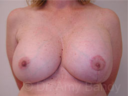 Breast Reconstruction Photo Gallery Patient - After