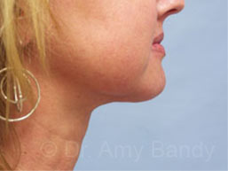 Neck Liposculpture Photo Gallery Patient - After