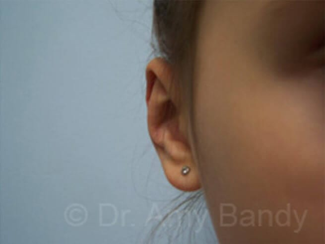 Otoplasty / Ear Surgery Photo Gallery Patient - After