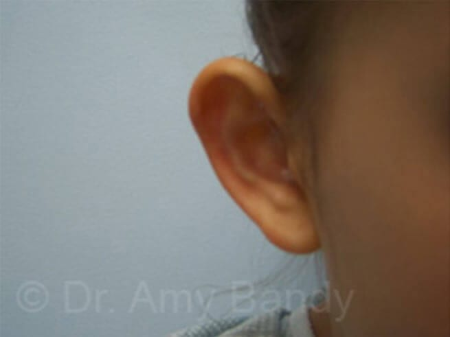 Otoplasty / Ear Surgery Photo Gallery Patient - Before