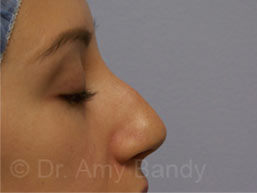 Rhinoplasty Photo Gallery Patient - Before