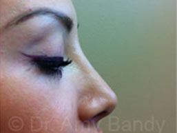 Rhinoplasty Photo Gallery Patient - After
